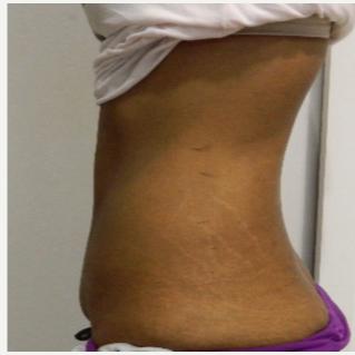 i lipo salendav ravi ulevaateid thyroksiini kaalulanguse annus