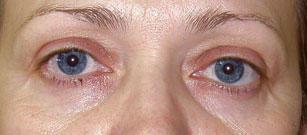 silmade all olevate rasvapadjade kadumine