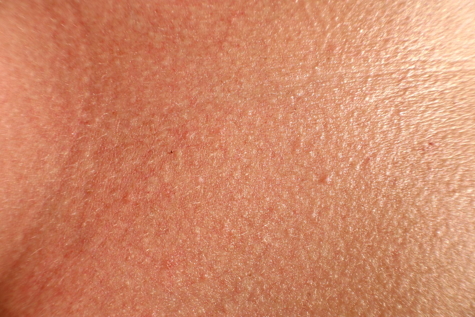 eemaldage liigne nahk parast kaalulangust kaotus kaalu kontrollisusteemide